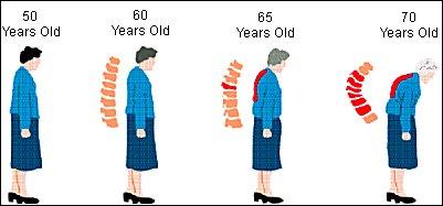 11++ How often should elder women get screened for osteoporosis ideas